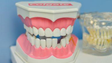 Photo of Woher kommen Zahnschmerzen und wie lassen sie sich behandeln?